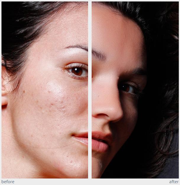 دانلود و معرفی پلاگین بسیار کاربردی Imagenomic Portraiture